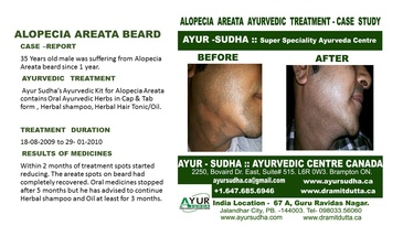 Alopecia Areata Ayurvedic Treatment by Ayurvedic Doctor Brampton at AYUR-SUDHA