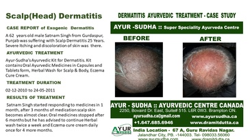 Ayurvedic Treatment for Scalp Dermatitis by AYUR-SUDHA - Ayurvedic Doctor Burlington