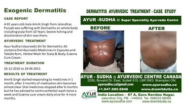 Ayurvedic Treatment for Exogenic Dermatitis by Ayurvedic Doctor Burlington at AYUR-SUDHA