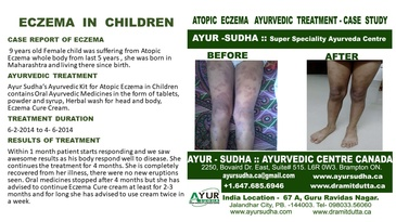 Case Report of Eczema in Children - Ayurvedic Treatment by AYUR-SUDHA - Ayurvedic Skin Clinic Brampton