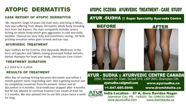 Case Report for Atopic Dermatitis - Ayurvedic Treatment by AYUR-SUDHA - Ayurvedic Skin Clinic Brampton