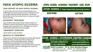 Ayurvedic Treatment for Face Atopic Eczema by Ayurvedic Doctor Burlington at AYUR-SUDHA