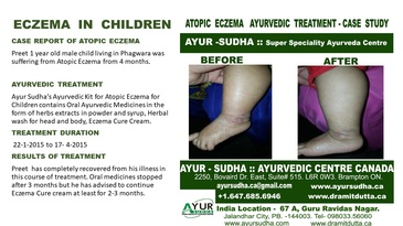Case Report of Atopic Eczema in Children - Ayurvedic Treatment by AYUR-SUDHA - Ayurvedic Skin Clinic Brampton
