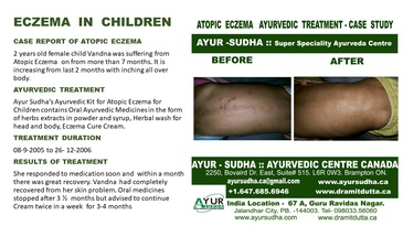 Ayurvedic Treatment for Atopic Eczema on Ankle by AYUR-SUDHA - Ayurvedic Doctor Mississauga