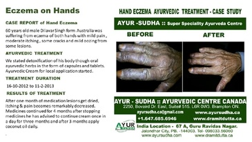 Case Report for Hand Eczema - Ayurvedic Treatment by AYUR-SUDHA - Ayurveda Kitchener
