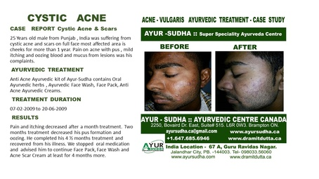 Cystic Acne Treated Cases at AYUR-SUDHA - Ayurvedic Doctor Burlington