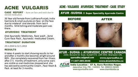 Acne Vulgaris Ayurvedic Treatment by Ayurvedic Doctor Brampton - AYUR-SUDHA