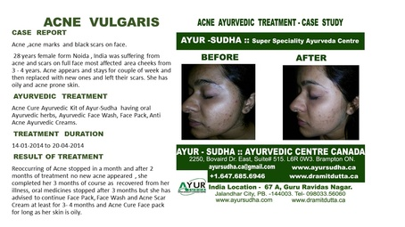 Acne Vulgaris Treated Case by AYUR-SUDHA - Ayurvedic Doctor Burlington