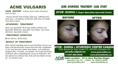 Acne Vulgaris Case Report by AYUR-SUDHA - Ayurvedic Skin Clinic in Brampton ON