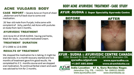 Acne Vulgaris on Body - Ayurvedic Treatment by AYUR-SUDHA - Ayurveda Kitchener