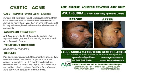 Ayurvedic Treatment for Cystic Acne and Scars by Ayurvedic Doctor Brampton - AYUR-SUDHA