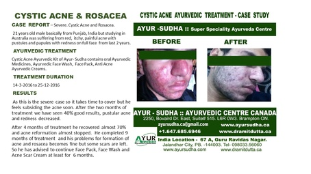 Cystic Acne and Rosacea Treatment at AYUR-SUDHA - Ayurvedic Centre Canada