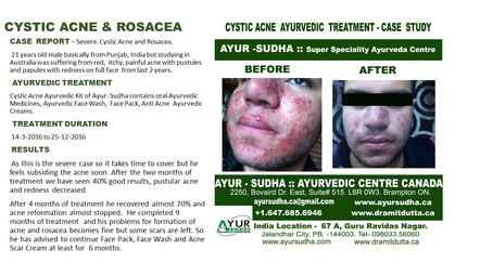 Cystic Acne and Rosacea Treatment by Ayurvedic Doctor Burlington at AYUR-SUDHA