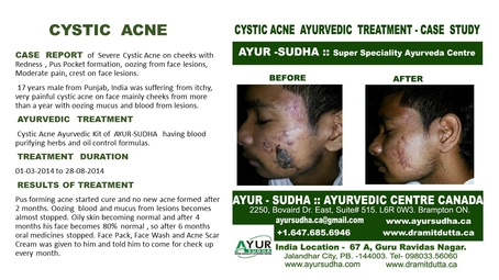 Cystic Acne Ayurvedic Treatment Case Study by Ayurvedic Doctor Mississauga at AYUR-SUDHA