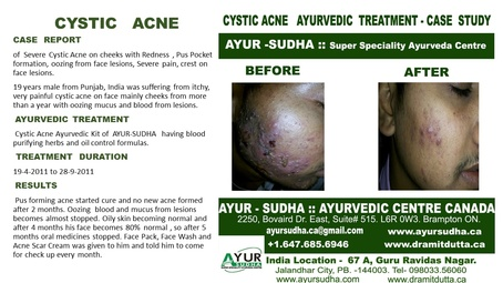 Severe Cystic Acne Treatment at AYUR-SUDHA - Ayurvedic Skin Clinic in Brampton