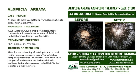 Alopecia Areata Ayurvedic Treatment by Ayurvedic Doctor Oakville at AYUR-SUDHA
