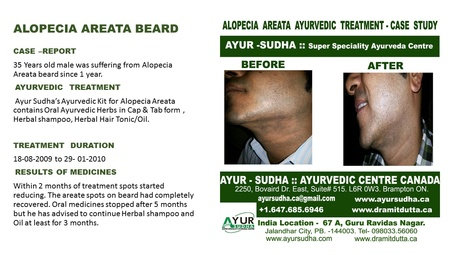 Beard Alopecia Areata Ayurvedic Treatment by AYUR-SUDHA - Ayurvedic Skin Clinic Brampton