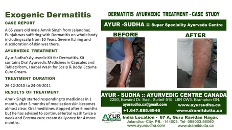 Ayurvedic Treatment for Exogenic Dermatitis by Ayurvedic Doctor Hamilton at AYUR-SUDHA