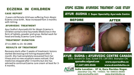 Ayurvedic Treatment for Eczema in Children by AYUR-SUDHA - Ayurvedic Doctor Toronto