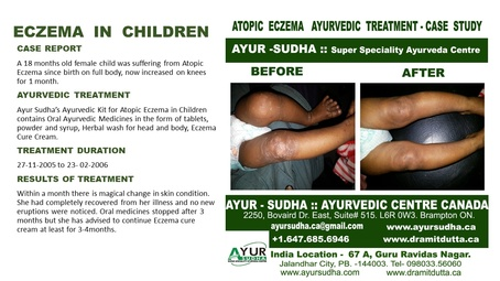 Atopic Eczema Ayurvedic Treatment by AYUR-SUDHA - Ayurvedic Clinic Brampton