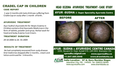 Cradel Cap in Children - Head Eczema Ayurvedic Treatment by AYUR-SUDHA - Ayurvedic Doctor Toronto