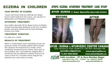 Eczema in Children - Ayurvedic Treatment by AYUR-SUDHA - Ayurvedic Clinic Brampton