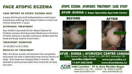 Ayurvedic Treatment for Face Atopic Eczema on Ankle by AYUR-SUDHA - Ayurvedic Doctor Hamilton
