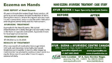 Hand Eczema Ayurvedic Treatment by AYUR-SUDHA - Ayurveda Kitchener