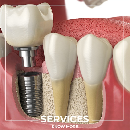 Dental Implants by Dentistry On Jane - Maple Dentists