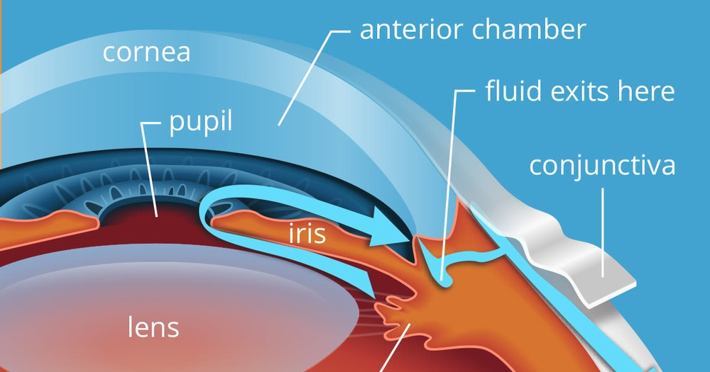 glaucoma_diagram_eye.jpg
